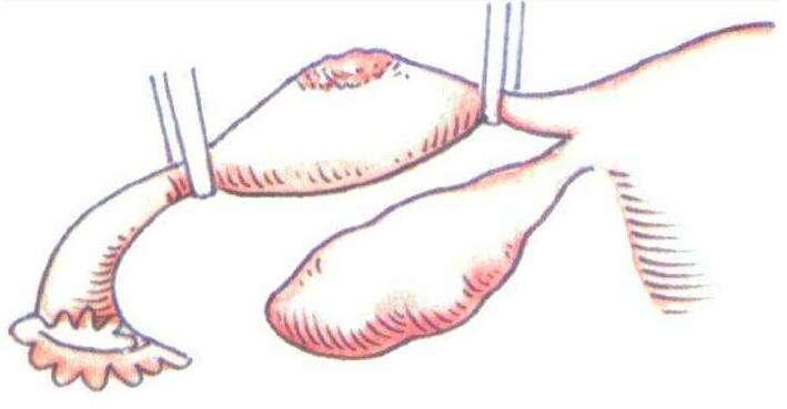 输卵管肿瘤